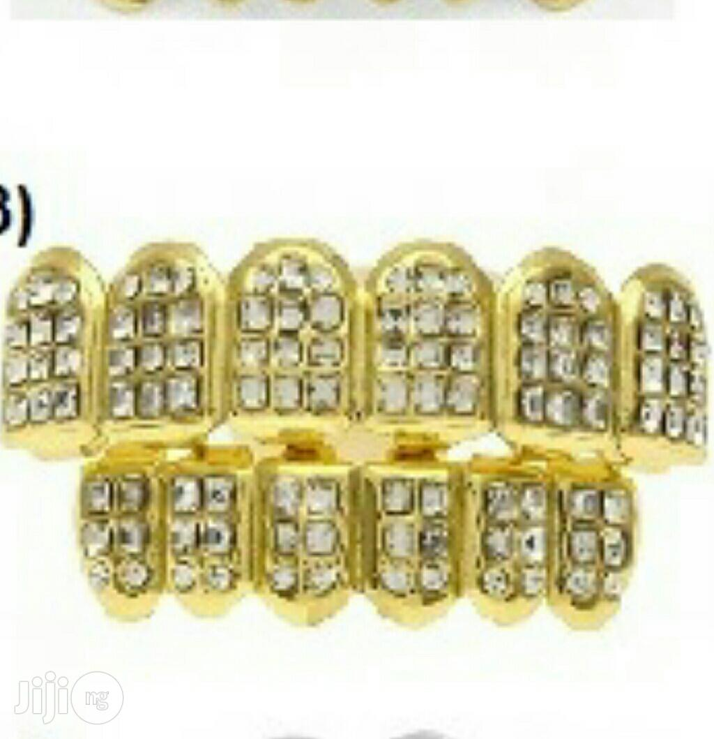 Gold Plated Teeth (Single Or Double Plated Grills) | Jewelry for sale in Lekki Phase 1, Lagos State, Nigeria