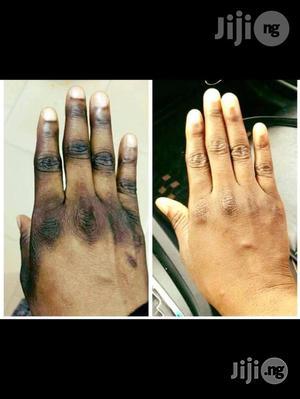Dark Knuckles Cream | Skin Care for sale in Lagos State, Ilupeju