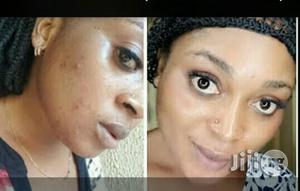 Clear Pimples, Acne And Black Spots | Skin Care for sale in Rivers State, Port-Harcourt