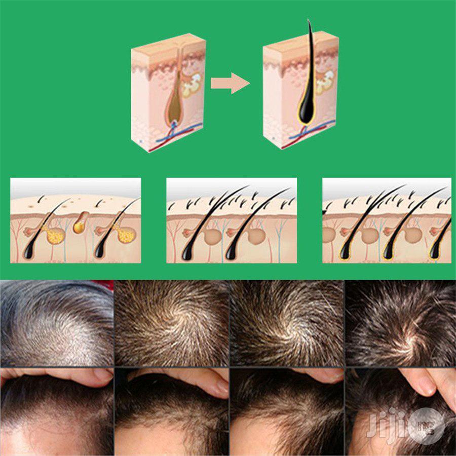 Yuda Hair Growth Spray - Baldness, Hair Loss & Ensures Hair Growth   Hair Beauty for sale in Dutse-Alhaji, Abuja (FCT) State, Nigeria