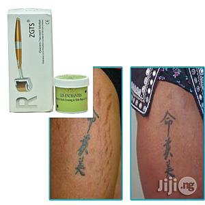 Stretch Mark Professional Treatments for All-Round Skin Issues