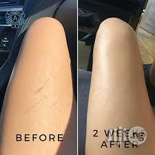Stretch Mark Professional Treatments for All-Round Skin Issues | Skin Care for sale in Lekki, Lagos State, Nigeria