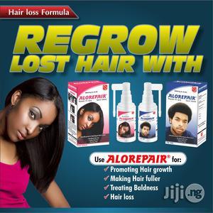 Alorepair Minoxidil Hair Spray - Baldness, Scanty Edges Beard Growth   Hair Beauty for sale in Abuja (FCT) State, Mpape
