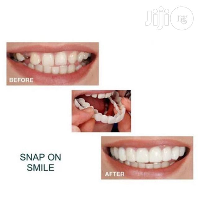 Snap On Smile | Tools & Accessories for sale in Ikeja, Lagos State, Nigeria