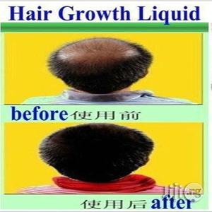 Hair Growth Oil | Hair Beauty for sale in Lagos State, Surulere