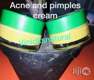 Acne Treatment Face Cream | Skin Care for sale in Abuja (FCT) State, Gwarinpa