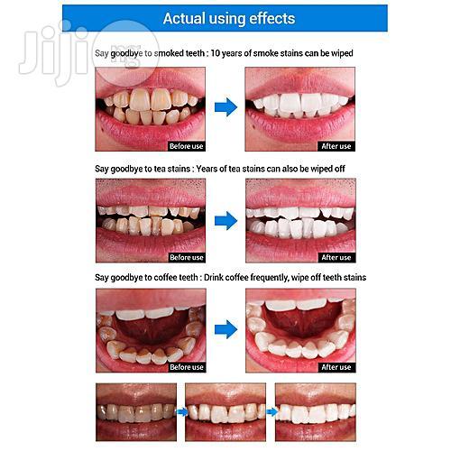 Original Teeth Whitening & Plague Removal Serum | Skin Care for sale in Ikeja, Lagos State, Nigeria