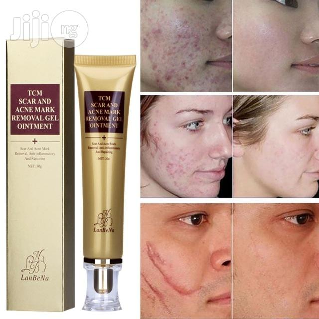 Archive: Scar, Marks Removal, Acne Treatment, Skin Repair For Face And Body