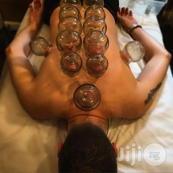 Archive: Cupping Therapy