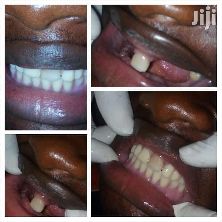 Teeth Care | Health & Beauty Services for sale in Ibadan, Oyo State, Nigeria