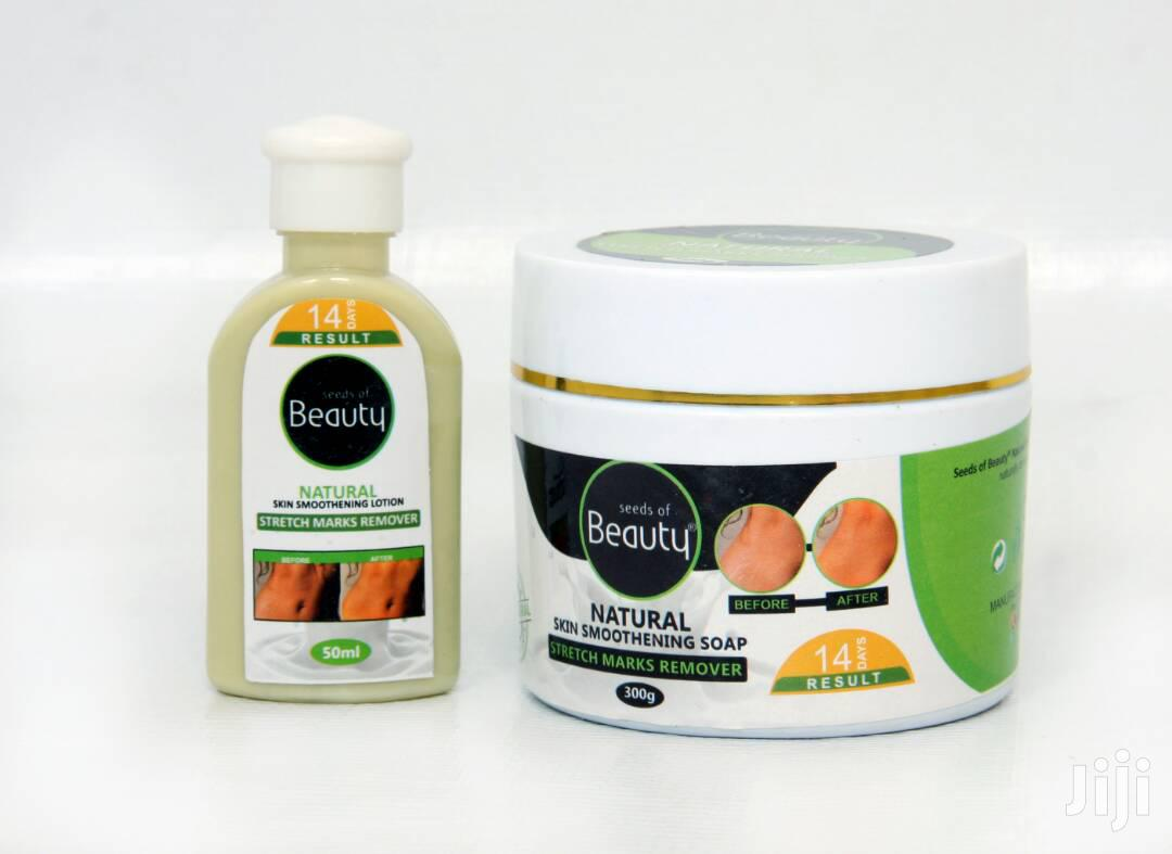 Stretch Marks Removal Soap And Cream