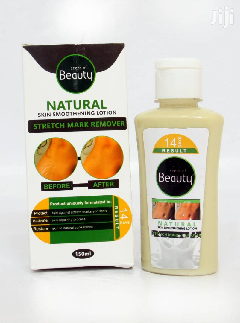 Stretch Marks Removal/ Skin Smoothning Lotion