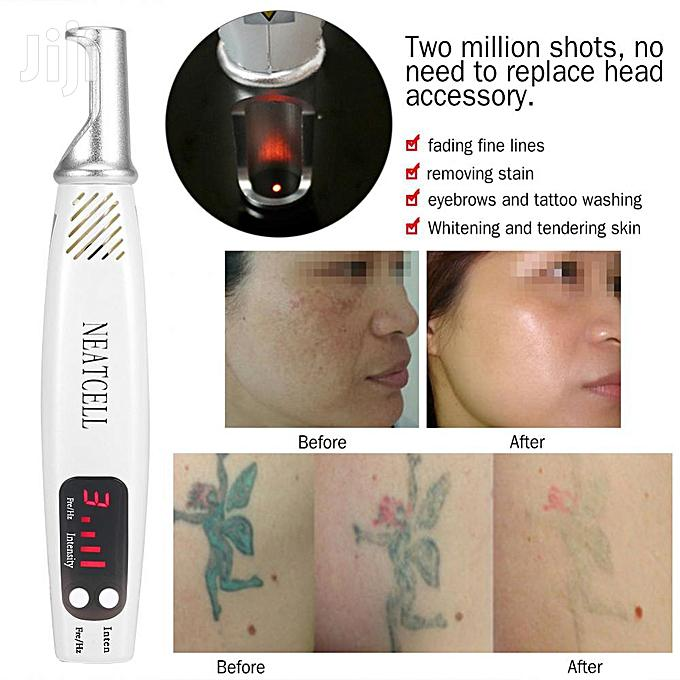 Laser Pen Pigment Tattoo Scar Mole Freckle Dark Spot Remover | Tools & Accessories for sale in Ikoyi, Lagos State, Nigeria