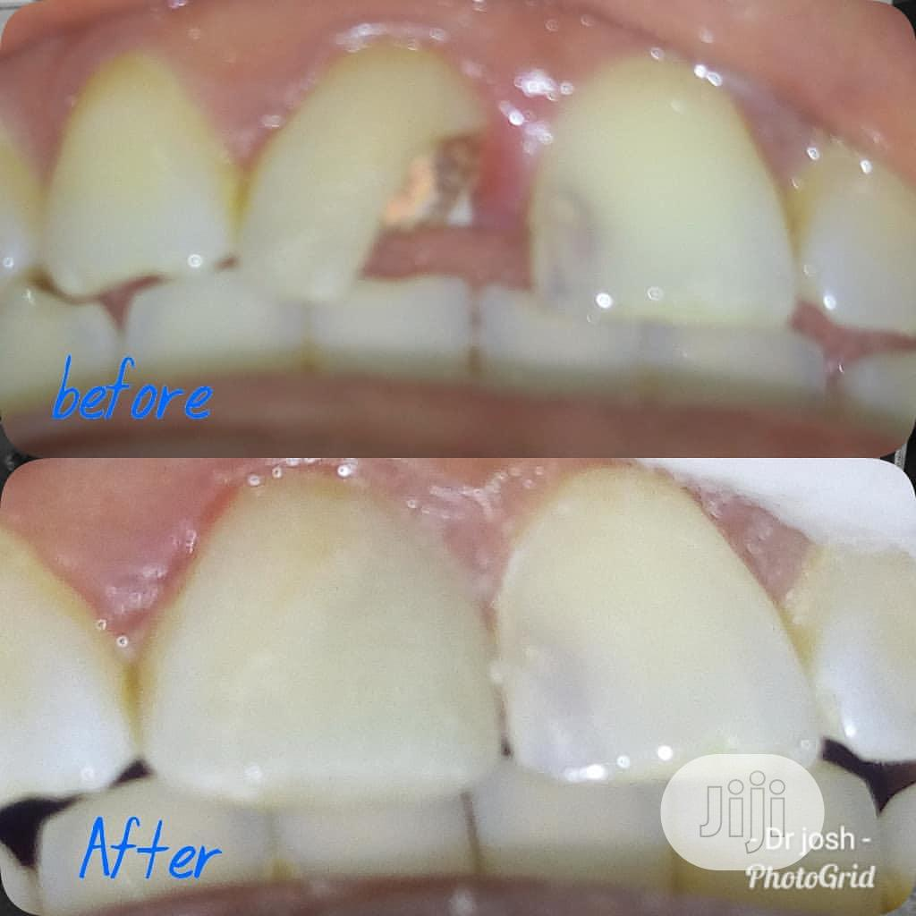 Archive: Dental Extraction