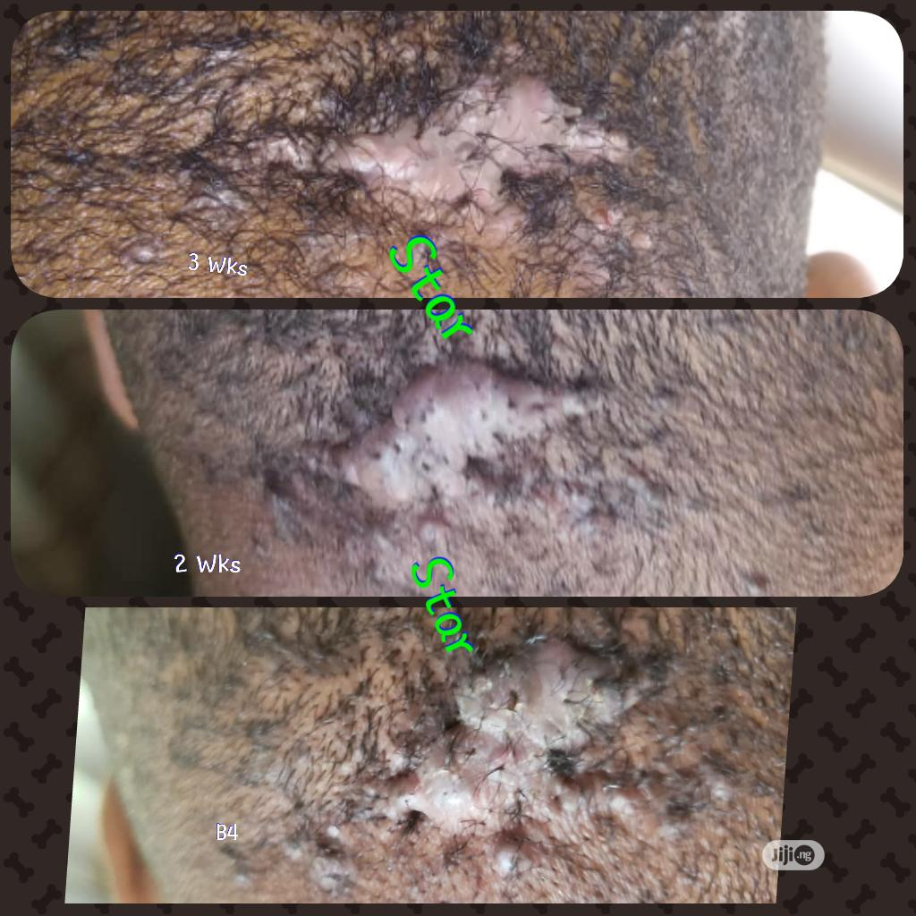 Bumps And Keloid Treatment