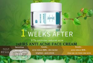 Anti Acne: Pimple, Scar, Black Spot, Oil and Burn | Skin Care for sale in Enugu State, Enugu