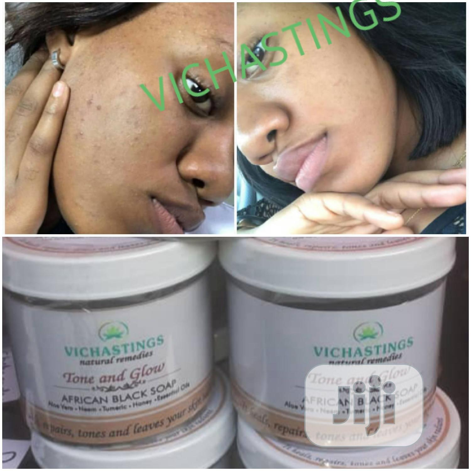 Tone and Glow Black Soap(700G) Say No to Bleaching Dark Knuckles | Skin Care for sale in Kosofe, Lagos State, Nigeria
