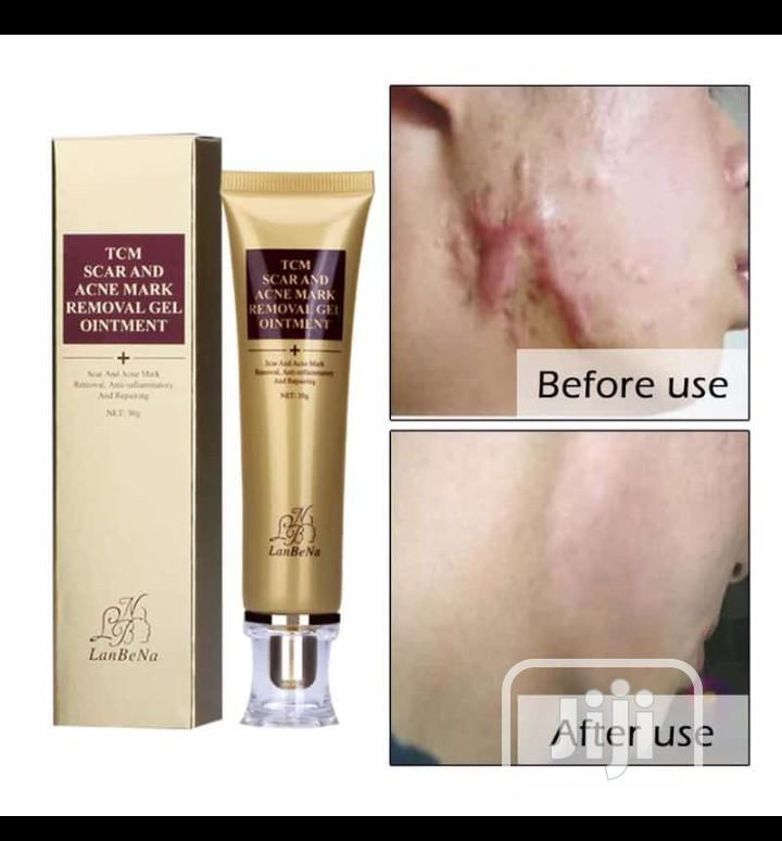 Original TCM Lanbena Acne Scar Removal Gel | Skin Care for sale in Oshodi-Isolo, Lagos State, Nigeria