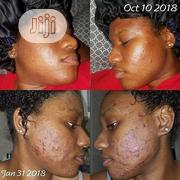 Facials Treatments And Spa Relaxation   Health & Beauty Services for sale in Abuja (FCT) State, Wuse 2
