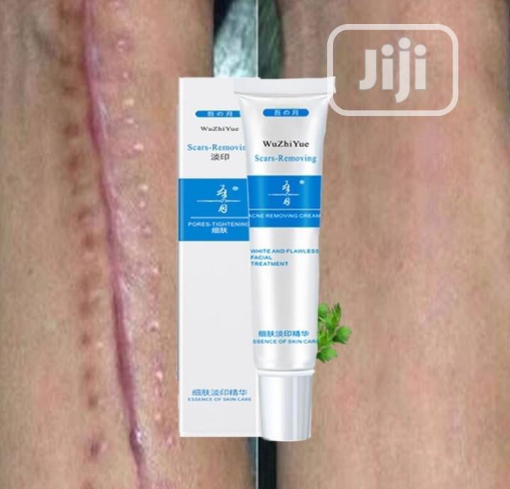 Scar Removal Cream. Face And Skin Repair Cream | Skin Care for sale in Ilorin South, Kwara State, Nigeria