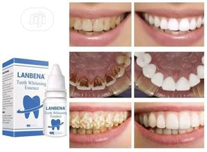 Teeth Whitening | Tools & Accessories for sale in Oyo State, Egbeda