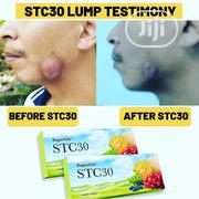 Stc30 Superlife Deal With Prostate Cancer, BP, Gluacoma Heart Attacks | Vitamins & Supplements for sale in Lagos State, Ikoyi