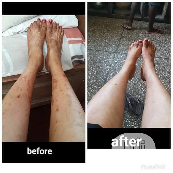 Archive: Skin Therapist