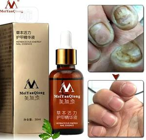 Anti Fungal Nail Treatment Oil | Skin Care for sale in Lagos State, Alimosho