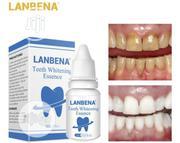Lanbena Teeth Whitening | Bath & Body for sale in Lagos State, Ikeja