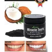 Teeth Whitening | Bath & Body for sale in Lagos State, Alimosho