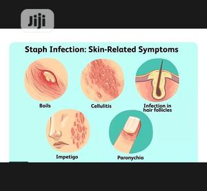 Staphylococcus Infection Treatment Available | Health & Beauty Services for sale in Abuja (FCT) State, Wuse 2