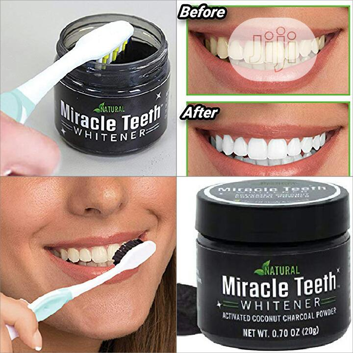 Miracle Teeth Whitener | Bath & Body for sale in Alimosho, Lagos State, Nigeria