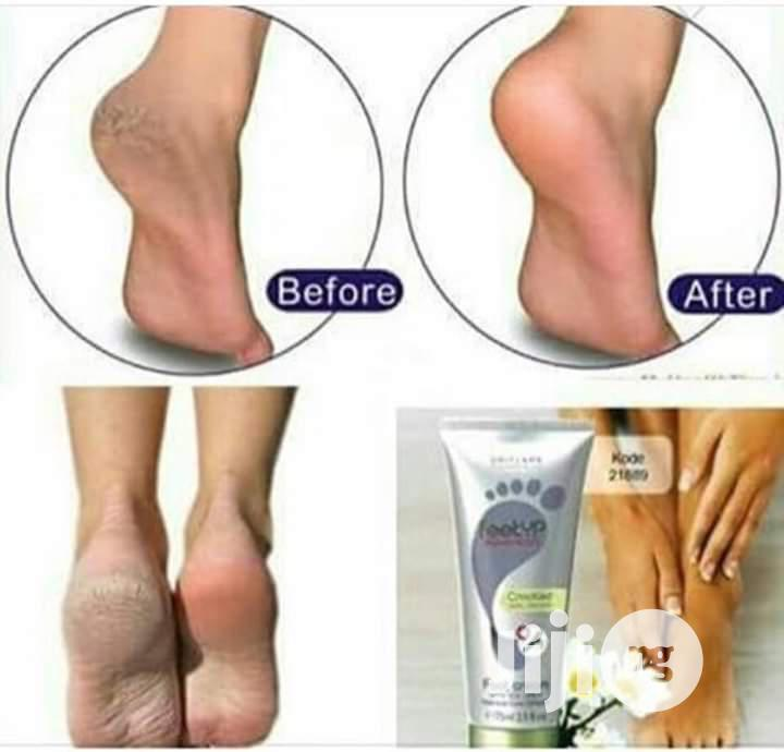 Feet Up Advanced Cracked Heel Repair