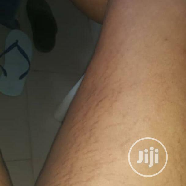 Stretchmarks Powder Mixed With Oil | Skin Care for sale in Uyo, Akwa Ibom State, Nigeria