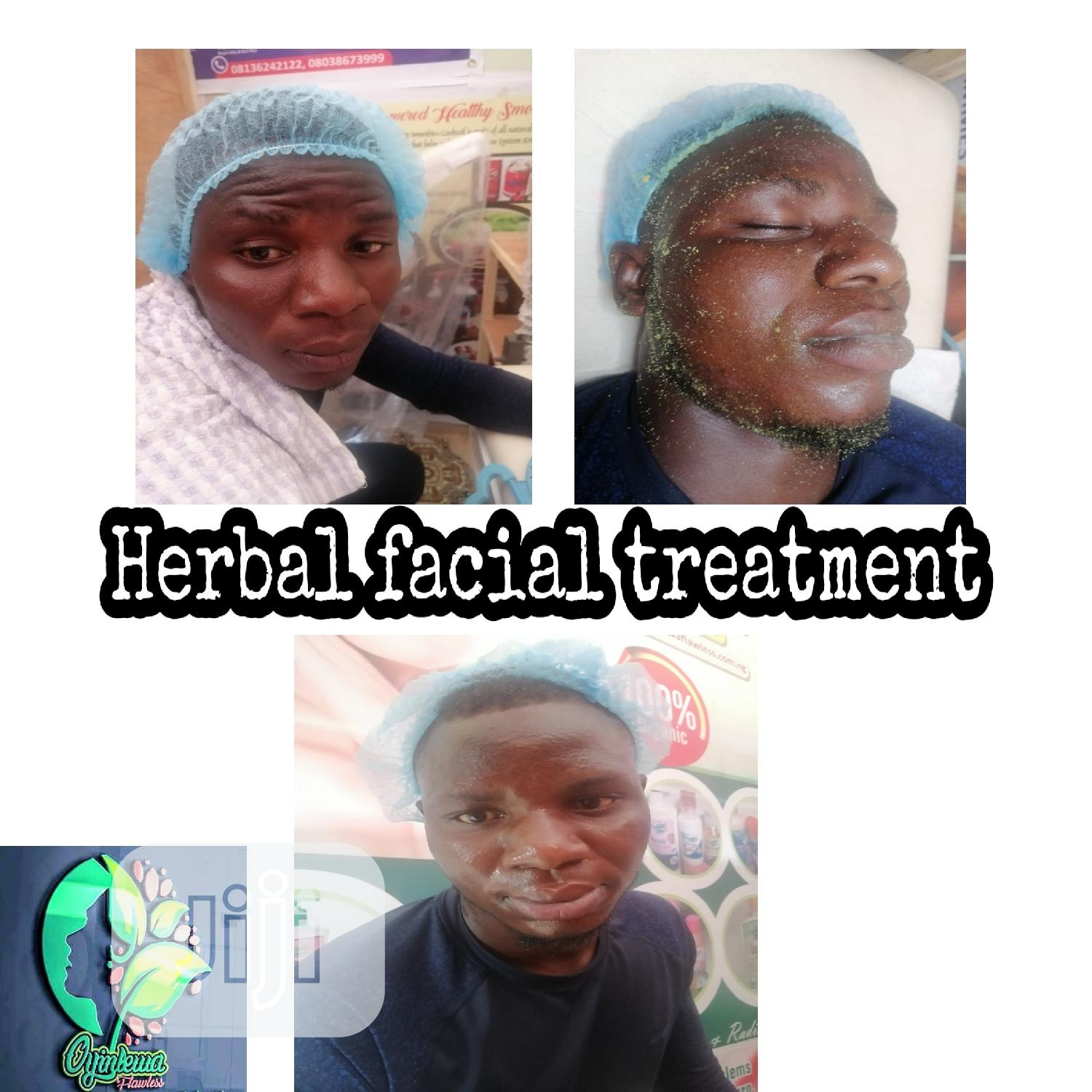 Herbal Hydrofacial Treatments | Health & Beauty Services for sale in Badagry, Lagos State, Nigeria