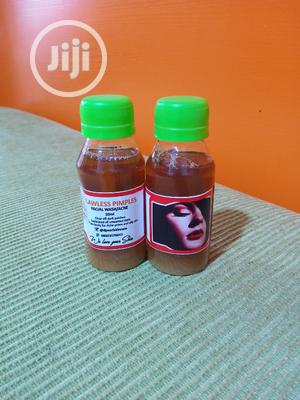 Acne /Pimples Face Wash | Skin Care for sale in Lagos State, Isolo