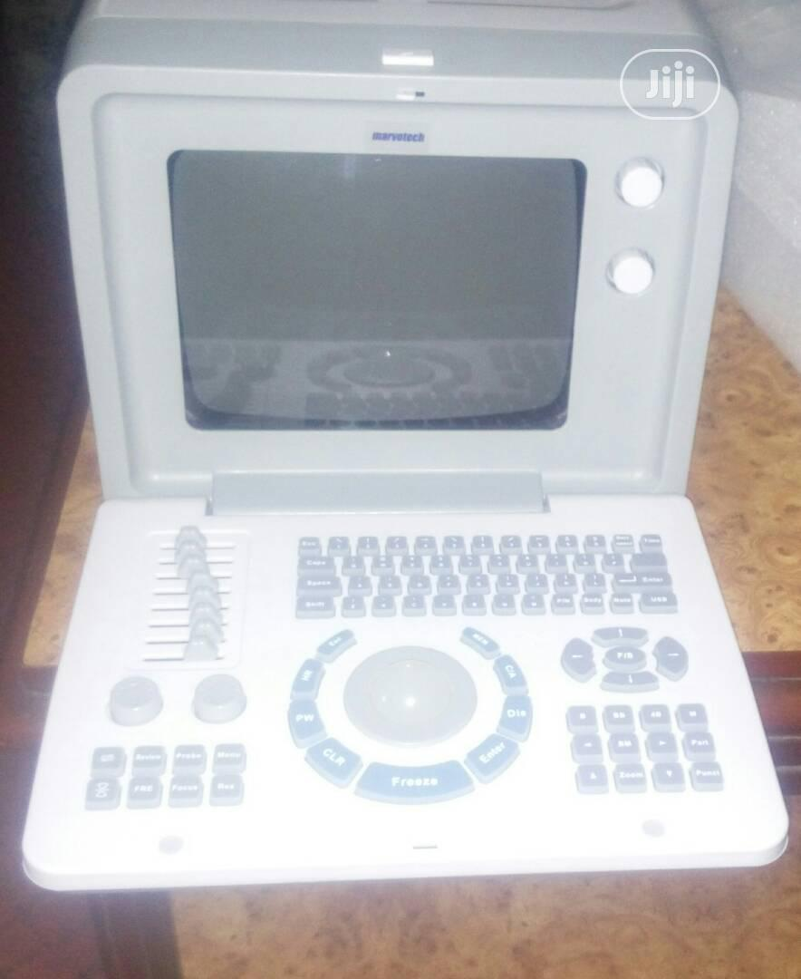 Table Top Ultrasound Machine