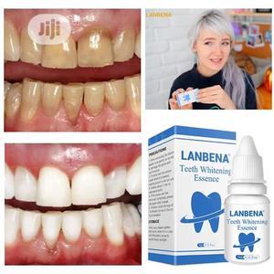 Teeth Whitener   Bath & Body for sale in Lagos State, Gbagada