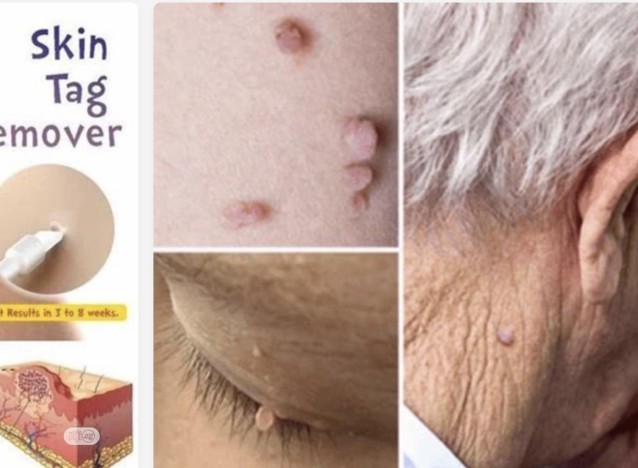 Archive: Skin Tag Mole & Genital Wart, Foot Corn Removal 10ml