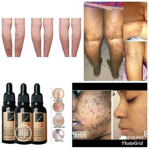 Lavender Repair Essence Essential Oils | Skin Care for sale in Lagos State, Isolo