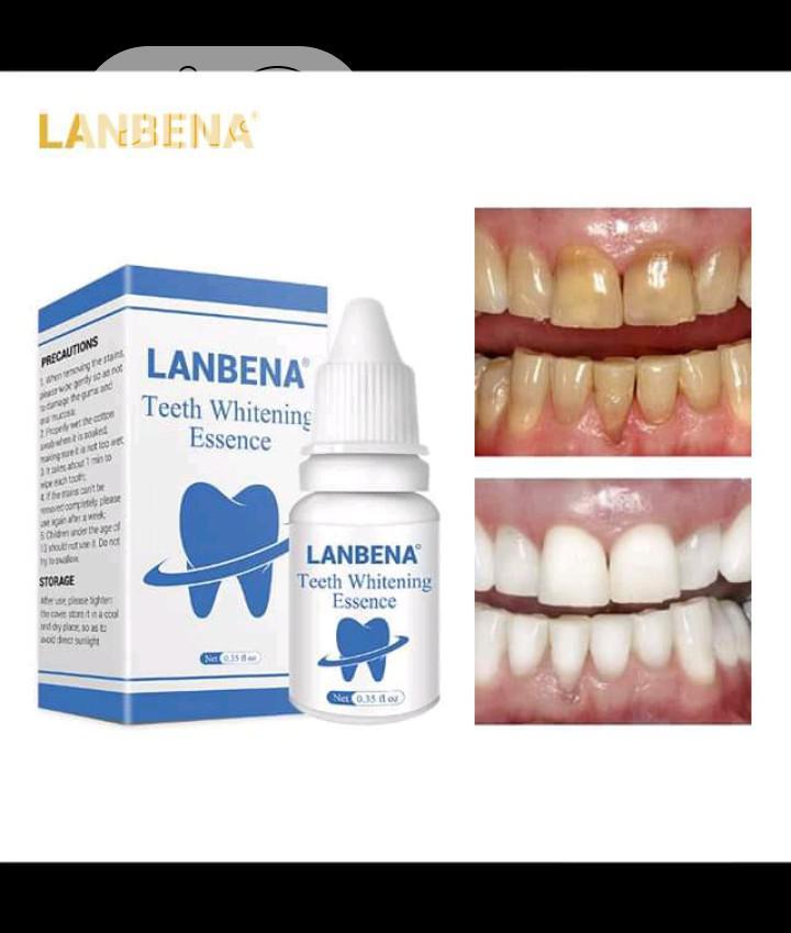 Labena Teeth Whitening
