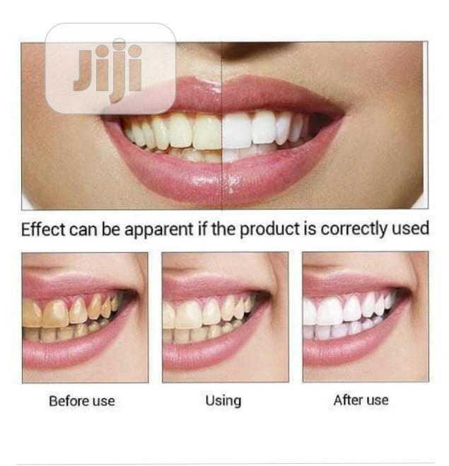 Labena Teeth Whitening | Skin Care for sale in Ojodu, Lagos State, Nigeria
