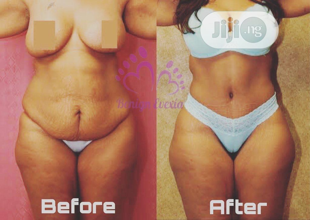 Radio Frequency Lipo Fat Reduction Skin Tigthening Cellulite