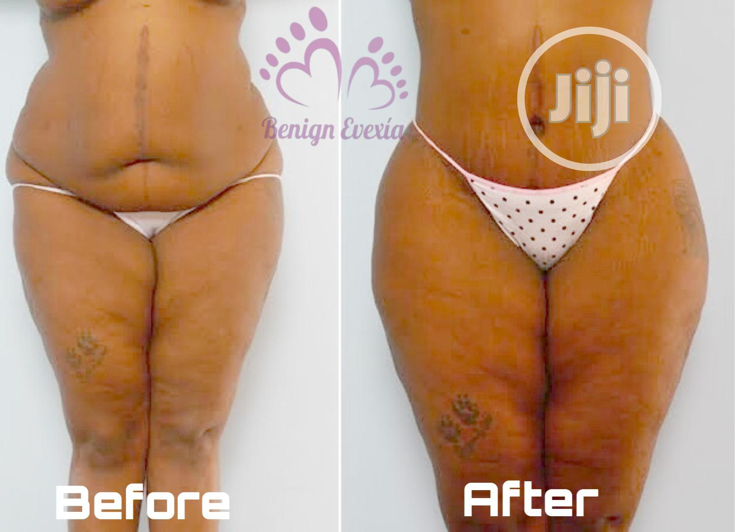 Radio Frequency Lipo Fat Reduction Skin Tigthening Cellulite | Health & Beauty Services for sale in Alimosho, Lagos State, Nigeria