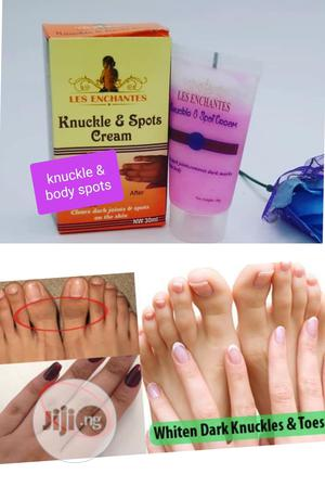 Knuckles And Spots Cream. Les Enchantes Knuckles Spots | Skin Care for sale in Lagos State, Apapa