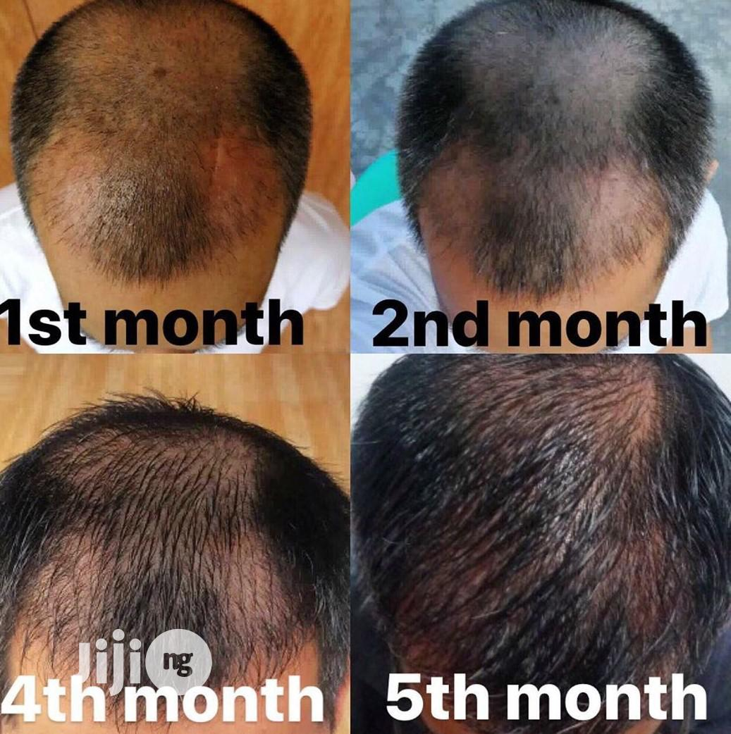Naturally Grow Your Hair and Stop Hair Breakages With Fruity