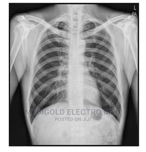 Wireless Digital Radiagraphy DR   Medical Supplies & Equipment for sale in Lagos State, Amuwo-Odofin
