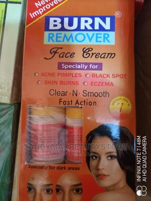 Burn Remover Face Cream | Skin Care for sale in Rivers State, Port-Harcourt