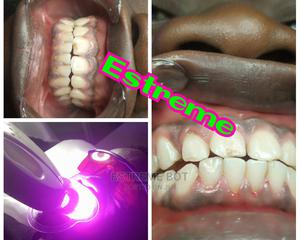 Laser Teeth Whitening Service | Health & Beauty Services for sale in Lagos State, Alimosho
