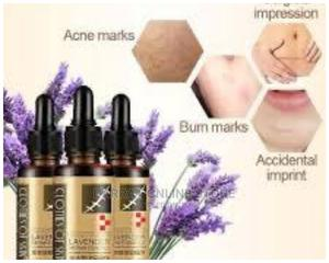 Lavender Stretch Mark Oil | Skin Care for sale in Lagos State, Agege